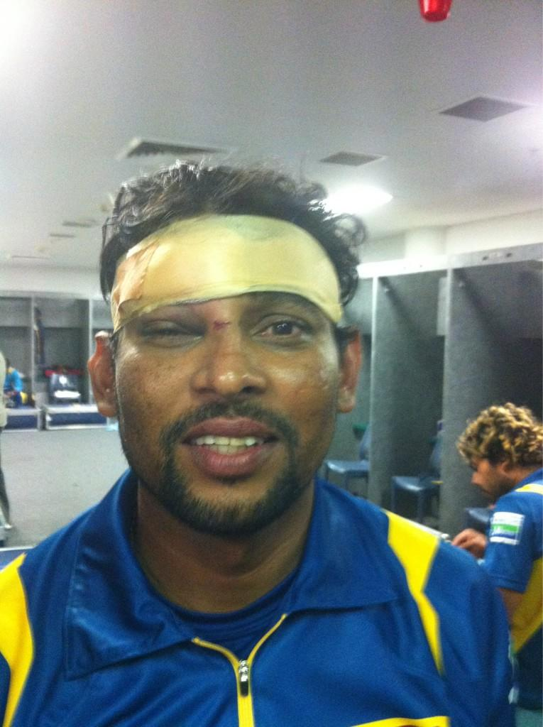 A bruised up Dilshan
